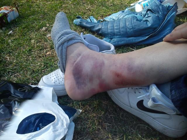 Sånn ser foten din ut etter at du har blitt påkjørt